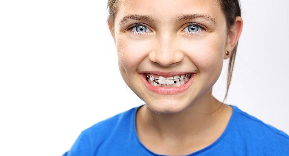 Trattamenti ortodontici in età evolutiva: prenditi cura del sorriso di tuo figlio!